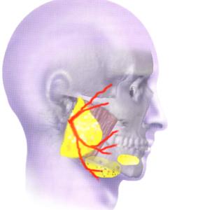 Pathologie des glandes salivaires