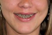 sourire gingival enfant