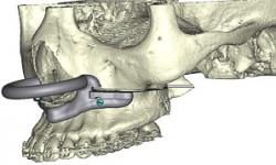 La chirurgie orthognathique assistée par ordinateur.