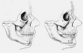 Tracé d'ostéotomie du menton