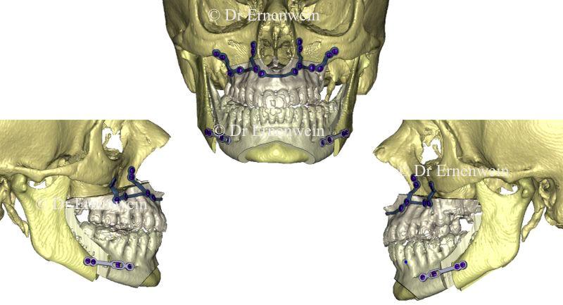 Chirurgie maxillo-mandibulaire utilisant une plaque d'ostéosynthèse en titane sur mesure obtenu après chirurgie virtuelle et impression par fritage laser. A la mandibule, chirurgie guidée utilisant une plaque à réglage sur site. Simulation d'une génioplastie.